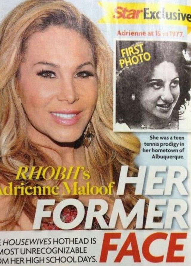 Photo Adrienne Maloof As A Teenager Before Her Plastic