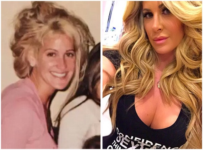 kim-zolciak-plastic-surgery