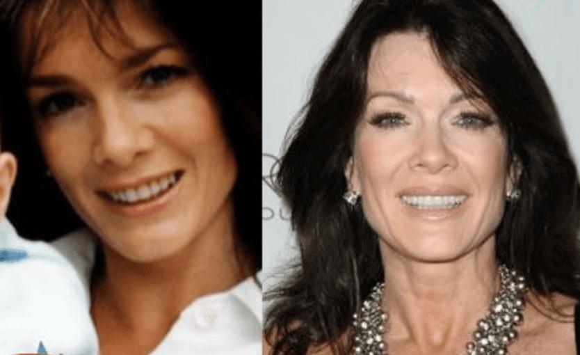 Before And After Lisa Vanderpump Denies Having A Facelift