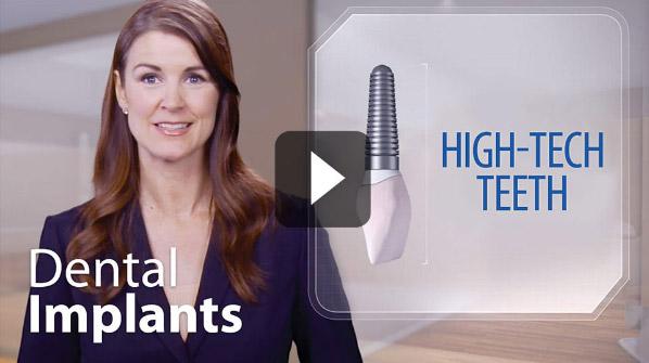 Dental Implant Video - High Tech Teeth