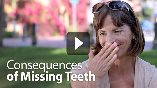 Dental Implant Video - Consequences of Missing Teeth