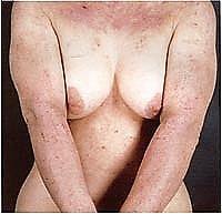 eczema-generalizzato