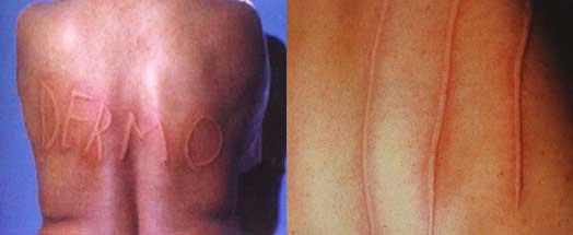 orticaria dermografica