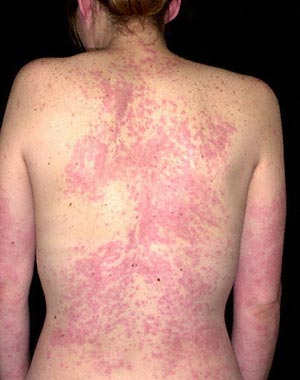 Image Result For Shellfish Allergy Treatment Benadryl