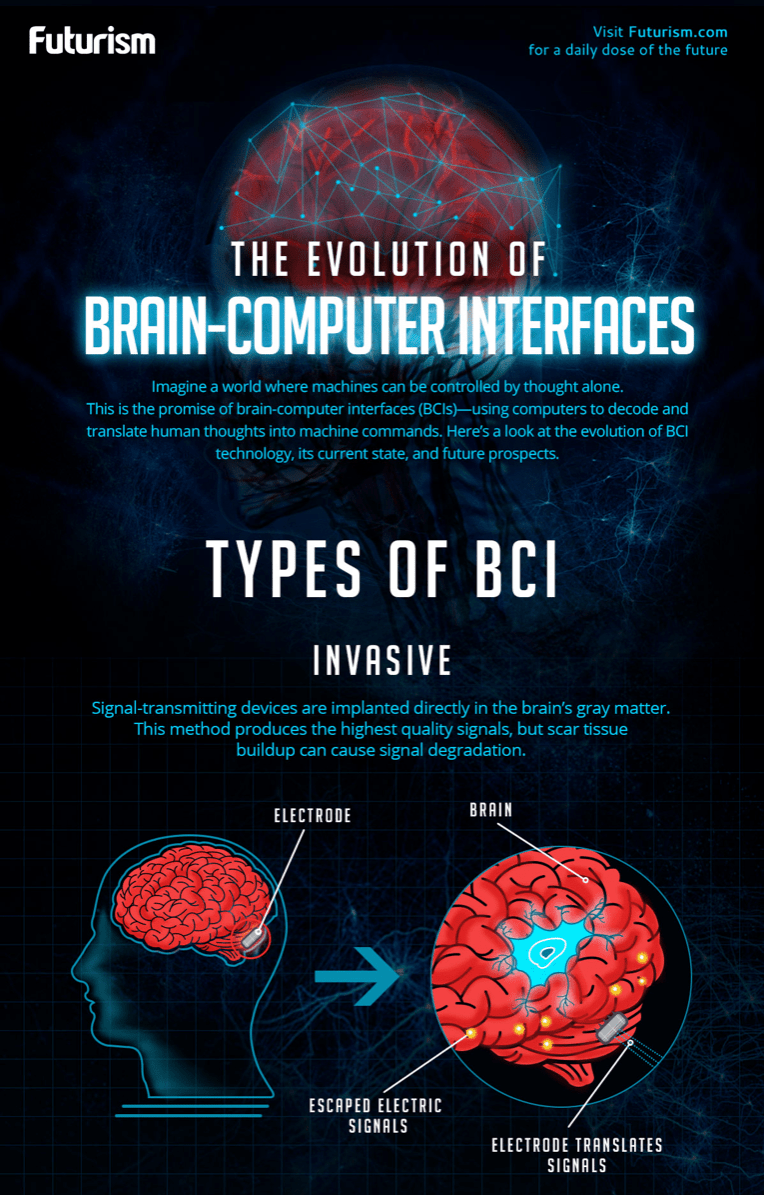 brain-computer interfaces.png