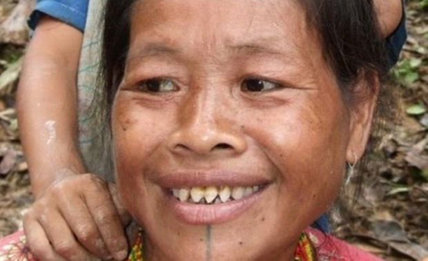 tandenvijlen - TOP 10 MOST EXTREME SHAPES OF BODY MODIFICATION