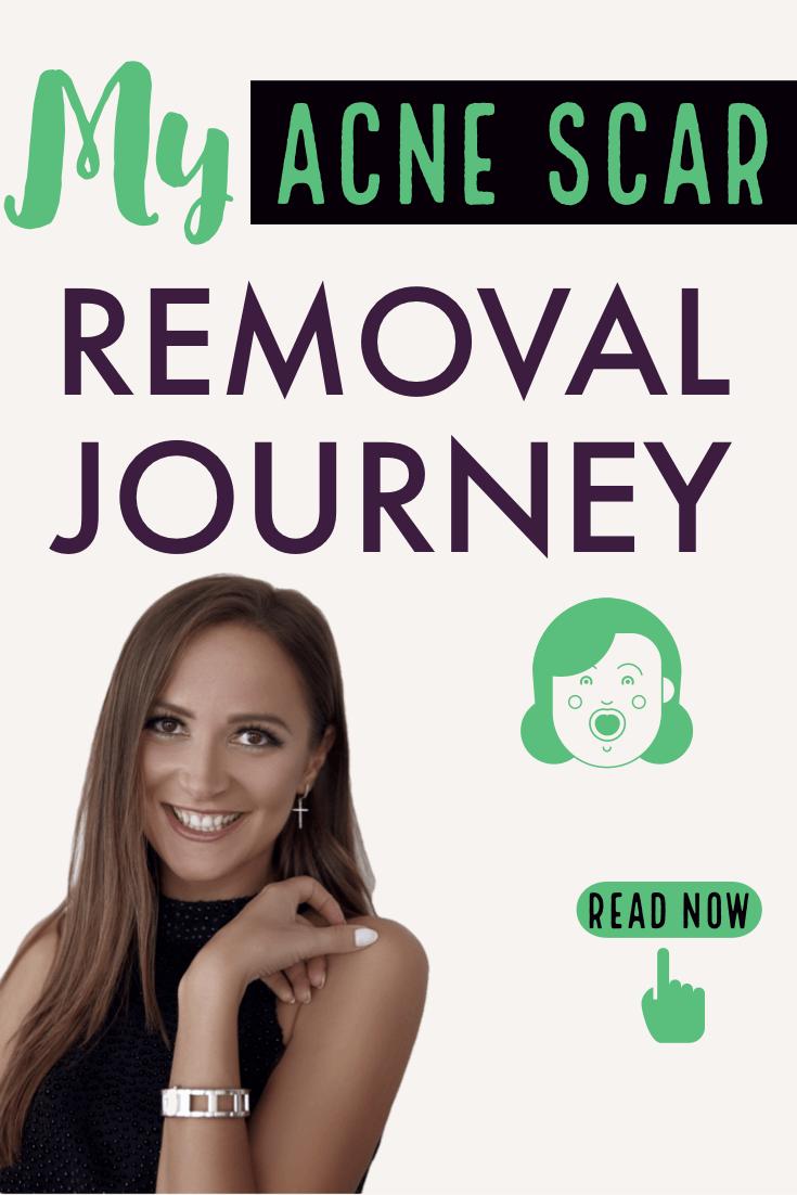 acne scar removal remove accutane