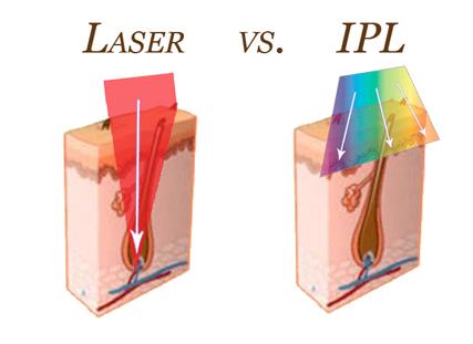 blog allwhite laser aw3