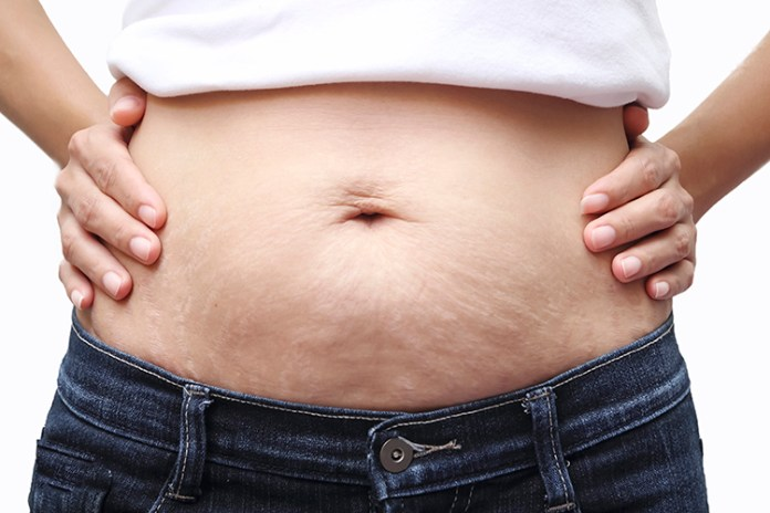 We've all been in the situation where we're stuck with those stubborn last pounds of belly fat. We've discovered there could be a few factors contributing to the extra fat on your belly without you even realizing it!