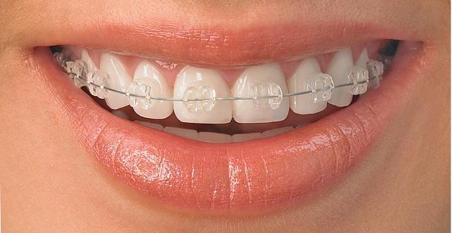 ضرورة خلع الأسنان قبل التقويم المرسال