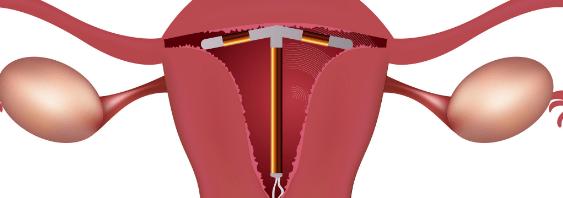 اضرار تركيب اللولب بدون دوره المرسال