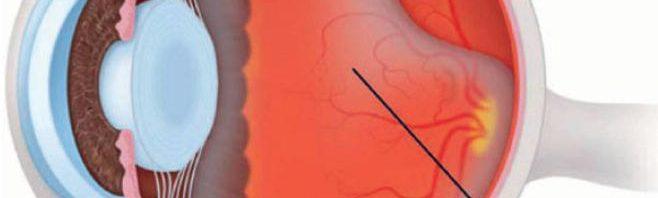 مراحل الرؤية للعين وانفصال الشبكية 1 الموقع الرسمى