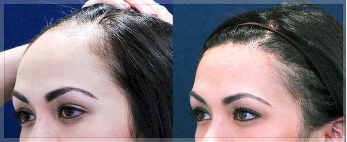 علاجات طبيعية لصلع مقدمة الرأس المرسال