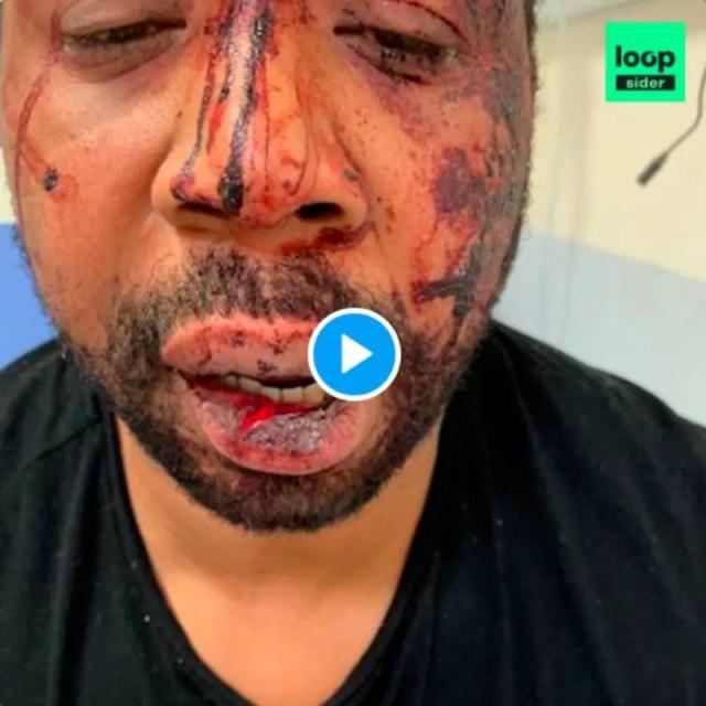 Paris : les images choquantes d'un producteur de musique tabassé par la  police pour non-port du masque - VIDEO | alNas.fr