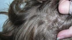 تفسير حلم الشعر الوسخ في المنام