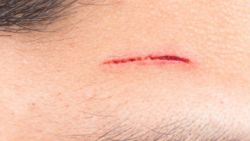 تفسير حلم الجرح في الوجه في المنام