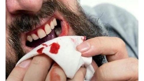 تفسير حلم خروج الدم من فم شخص آخر في المنام