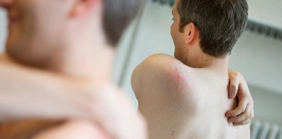 نتيجة بحث الصور عن سرطان الجلد للرجال
