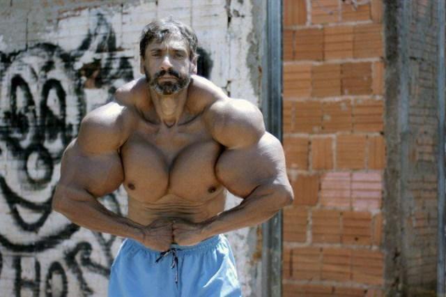 رجل يتحول إلى «هالك» الحقيقي بحقن عضلاته بالزيت