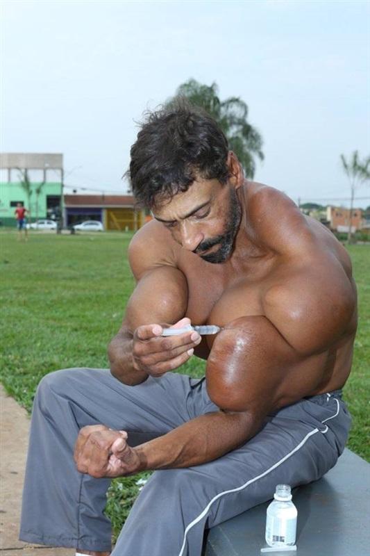 رجل يتحول إلى «هالك» الحقيقي بحقن عضلاته بالزيت1