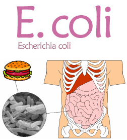 Ecoli Stec Infection