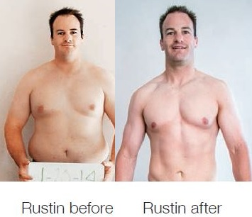 Rustin Before After Picture