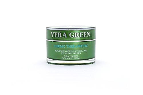 Vera Green Crema Terapéutica con Gel de Aloe Vera Bio – Tratamiento Regenerador de Cara y Cuerpo – Rosácea Dermatitis Acné Psoriasis Quemaduras y Manchas – Todo Tipo de Pieles y Edades – 50 mililitros