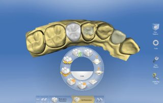 CEREC Sirona CAD/CAM 3D