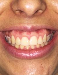 Cursos Odontologia Sorriso Gengival