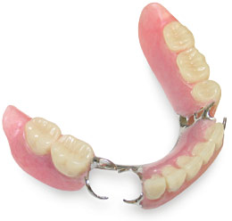 Removable partial dentures alpha omega dental waco removable partial dentures usually consist of replacement teeth attached to pink or gum colored plastic bases depending on your needs your dentist will solutioingenieria Image collections