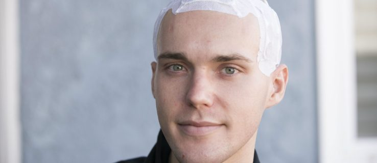 Brain cancer patients live longer with this electric skull cap