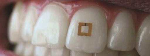 tooth_sensor_teeth