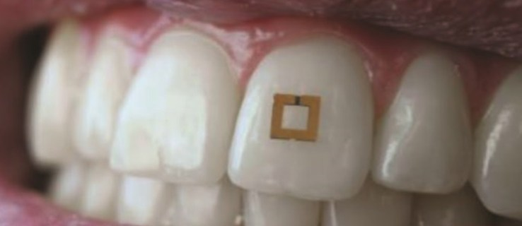 This tooth-mounted sensor knows what you've eaten