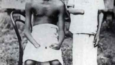اطفال قطعت اياديهم من قبل المستعمرين عقابا لهم ALAMY