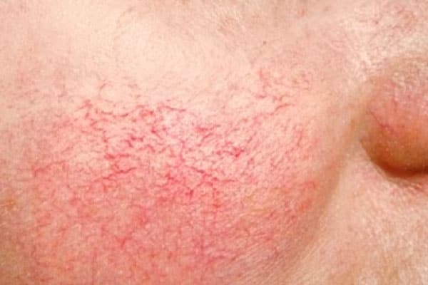 Image result for telangiectasia