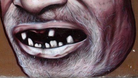 تفسير حلم سقوط الأسنان في اليد أو بدون ألم في المنام
