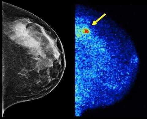 كاشف جديد لأورام الثدي أكثر دقة 3 مرات من الماموجرام