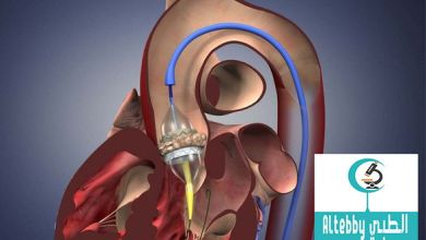 استبدال صمام القلب آمن لكبار السن بواسطة القسطرة القلبية