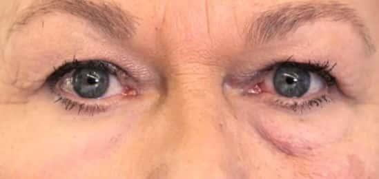 تطوير طبقة جلد ثانية تحارب التجاعيد
