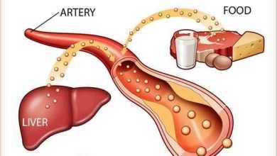 الكوليسترول Cholesterol ما اسباب ارتفاعه وكيفية علاجه