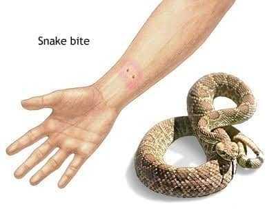 عضة الثعبان Snake Bite3