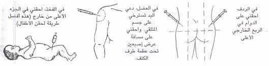 كيفية الحقن العضلي 1