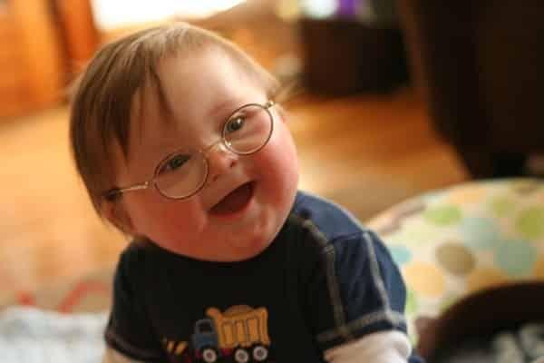 مُتلازِمةُ داون Down Syndrome