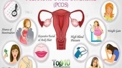 متلازمة تكيس المبيض Polycystic Ovary Syndrome