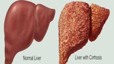دواء شهير للحساسية والربو يمنع تليف الكبد في التهاب الأوعية الصفراوية