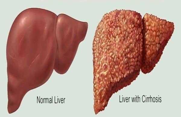 دواء شهير للحساسية والربو يمنع تليف الكبد