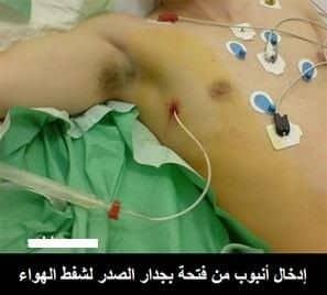 استرواح الصدر Pneumothorax 2