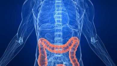 تناول المضادات الحيوية 15يوما أو أكثر ترفع الإصابة بسرطان الأمعاء 73%