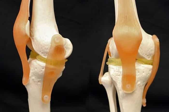 طباعة ناجحة لغضروف اصطناعي لمفصل الركبة