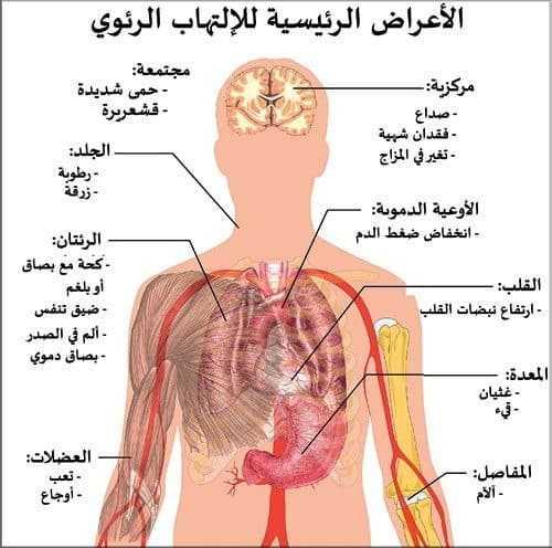 الالتهاب الرئوي Pneumonia